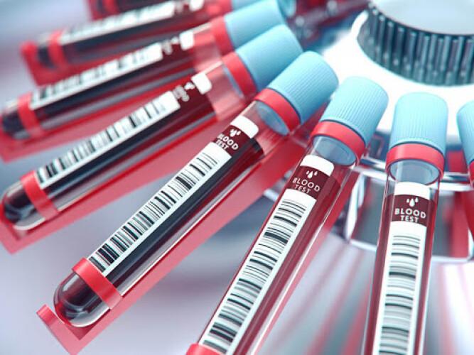 Аналіз крові